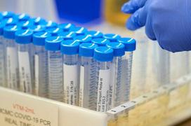 Biến thể COVID mới tại Pháp có thể 'qua mặt' xét nghiệm PCR