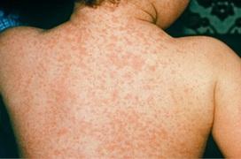 Chẩn đoán và xử lý kịp thời khi bị sốt phát ban do bệnh Rubella
