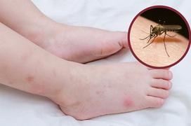 Ngứa ngáy khi bị muỗi đốt thường xuyên, làm sao để không bị muỗi đốt?