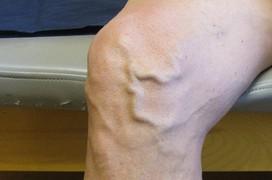 Chân nổi gân xanh: Dấu hiệu bệnh lý nguy hiểm không nên xem thường
