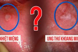 Nhiệt miệng và ung thư khoang miệng: Hướng dẫn cách phân biệt chính xác