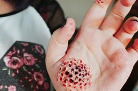 8 dấu hiệu bệnh ký sinh trùng đang giết chết bạn mỗi ngày