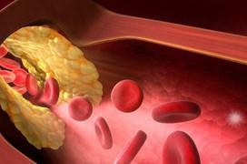 Máu nhiễm mỡ và những điều cần biết