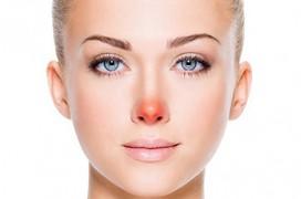 Những dấu hiệu trên gương mặt cảnh báo bệnh nguy hiểm