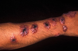 Tổng quan bệnh ký sinh trùng ở người
