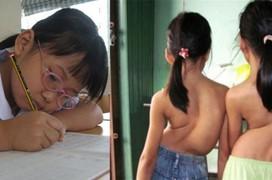 Tổng hợp các nguyên nhân gây bệnh cong vẹo cột sống