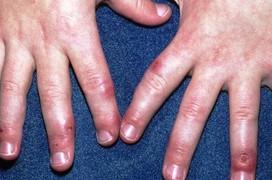 Bật mí cách phòng ngừa cước chân tay mùa đông hiệu quả