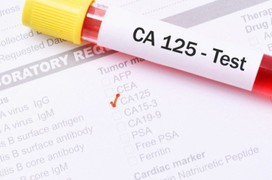 CA 125: Chỉ dấu quan trọng trong tầm soát ung thư buồng trứng