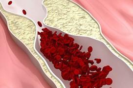 Những phương pháp 'làm sạch' mạch máu: người già hay người trẻ đều cần biết