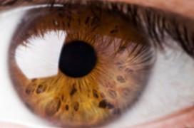 Nguyên nhân và triệu chứng viêm dây thần kinh thị giác