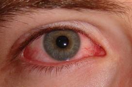 Viêm giác mạc biểu hiện ra sao?