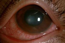 Viêm giác mạc là gì?