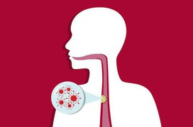 Ung thư thực quản giai đoạn 3 sống được bao lâu?