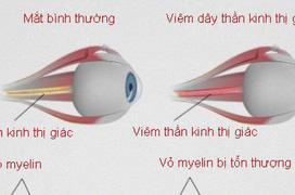Viêm dây thần kinh thị giác là gì?