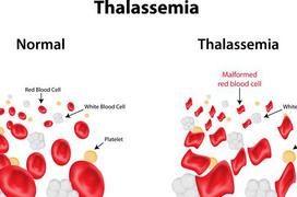 Cách phòng ngừa và điều trị bệnh tan máu bẩm sinh
