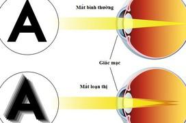 Loạn thị và nguyên nhân gây loạn thị