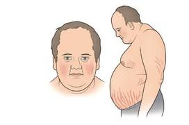 Những bệnh lý nghiêm trọng bạn có thể gặp do biến chứng của suy tuyến yên