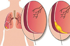 Các mức độ tràn dịch màng phổi từ thấp đến cao bạn cần nắm rõ