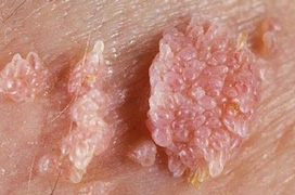 Những câu hỏi thường gặp về bệnh giang mai ở nam giới