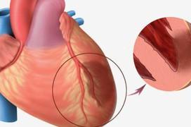 Dấu hiệu của bệnh u trong tim rất khó phát hiện