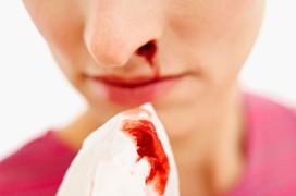 Khó cầm máu: Triệu chứng của bệnh máu khó đông