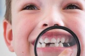 Bệnh sâu răng - thực trạng đầy báo động