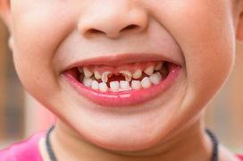 7 sai lầm nghiêm trọng về cách chăm sóc răng miệng trẻ em