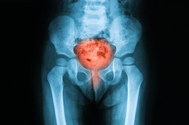 Bệnh viêm bàng quang là gì?
