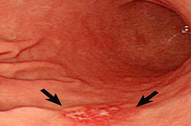 Bệnh viêm loét dạ dày tá tràng là gì? Nguyên nhân, triệu chứng và cách điều trị
