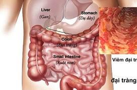 Viêm đại tràng là gì và những điều bạn cần biết để bảo vệ sức khỏe