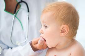 Loét lưỡi aphthe cách phòng ngừa và điều trị bệnh triệt để