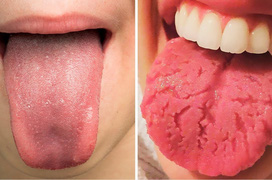 Tổng quan kiến thức về bệnh loét lưỡi aphthe