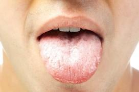 Giải đáp thắc mắc liên quan đến câu hỏi: Lưỡi trắng bệnh gì?