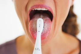 Lưỡi trắng dấu hiệu bệnh gì? Biện pháp nào giúp lưỡi khỏe mạnh, sạch vi khuẩn?