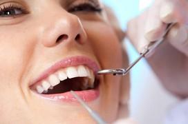 Lấy vôi răng có tốt không và những điều cần biết về lấy vôi răng