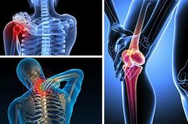 6 nguyên nhân đau nhức xương khớp bạn cần biết