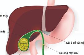 Bệnh sỏi mật và những điều cần biết về nguyên nhân gây sỏi mật