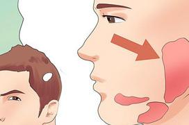 Tổng quan về bệnh quai bị: Nguyên nhân, dấu hiệu và cách phòng tránh