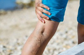 Độ tuổi bị suy giãn tĩnh mạch chân ngày càng giảm