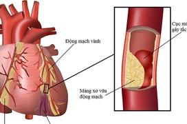 Nguyên nhân gây thiếu máu cơ tim bạn không ngờ đến