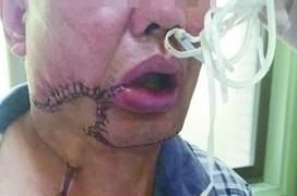 Các phương pháp điều trị ung thư biểu mô khoang miệng