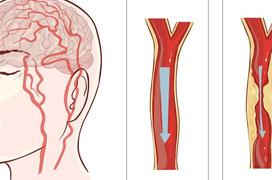 Những nhóm người nào có nguy cơ mắc bệnh phình mạch máu não cao?