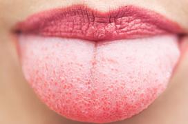 Lưỡi bị trắng là do nguyên nhân gì?