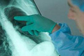 Dấu hiệu của bệnh nấm phổi không nên bỏ qua