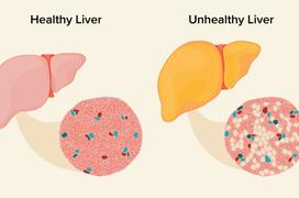 Gan nhiễm mỡ có thể gây ung thư gan nếu không được điều trị đúng cách