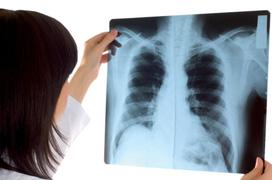Những điều cần biết về chụp X-quang phổi