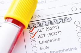Tìm hiểu về nhóm xét nghiệm đánh giá tình trạng hoại tử gan