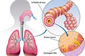 Những điều cần biết về điều trị viêm phế quản