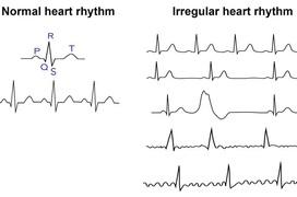 Rối loạn nhịp tim là gì? 10 điều cần nhớ về chứng rối loạn nhịp tim