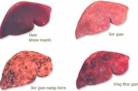 Cần lưu ý những gì trước khi xét nghiệm chẩn đoán xơ gan?